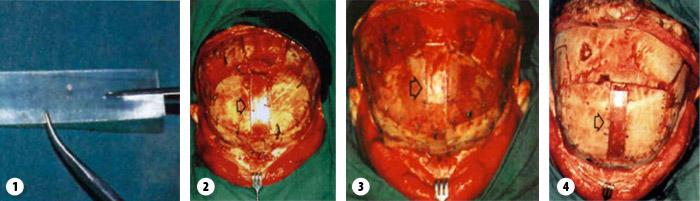 Zdjęcie 0.5 mm arkusza SR-PLLA oraz zdjęcia defektu kości pokryte warstwą SR PLLA