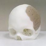 Technologia 3D w produkcji polimerowych implantów